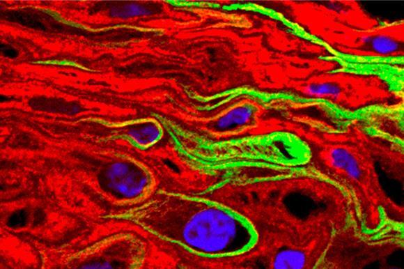 Около 13% раковых диагнозов в мире вызвано инфекциями и вирусами