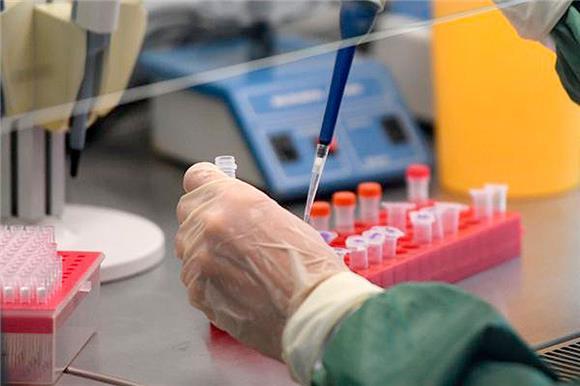 Роспотребнадзор объявил осоздании высокоточного теста длядиагностики коронавируса