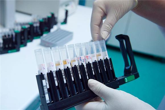 С16июля москвичи смогут бесплатно пройти ПЦР-тест накоронавирус