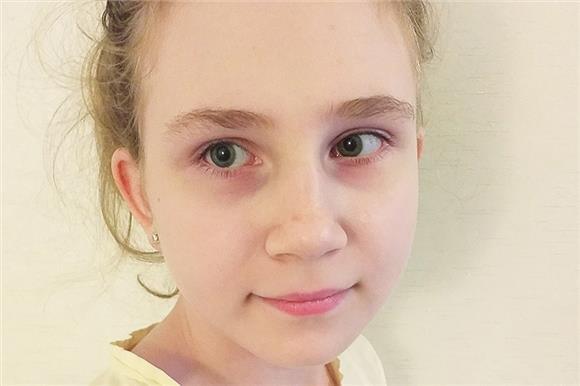 Алисе Люкшиной оплачены слуховые аппараты
