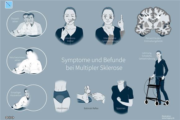 11 июня – Общероссийский день рассеянного склероза