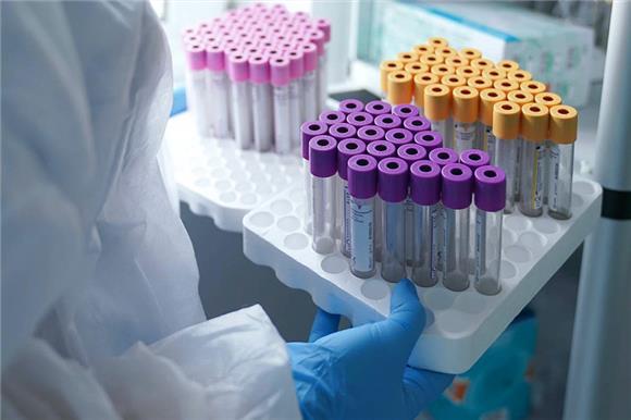 СМИ: вкоронавирусном регистре Минздрава число переболевших почти впять раз превышает статистику оперштаба