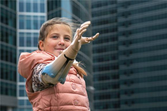 «Моторика» планирует расширить проект пореабилитации детей спротезами рук на16регионовРФ