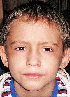 синтетики мой сын умер от лейкоза летнего времени