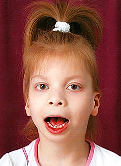 Русфонд Алина Сулейманова 6 лет детский церебральный паралич требуется курсовое лечение 196 600