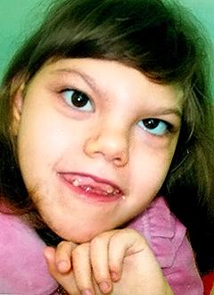 Русфонд Соня Половая 9 лет детский церебральный паралич требуется курсовое лечение 193 400