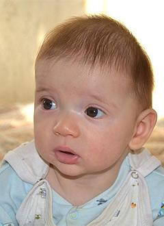 Деформация головы у ребенка