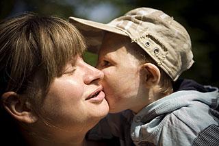 Оскар К., 3 года, состояние после тяжелых ожогов головы, туловища, обеих руках, обоих век и правого глаза, требуется этапное хирургическое лечение. 990 000 руб.